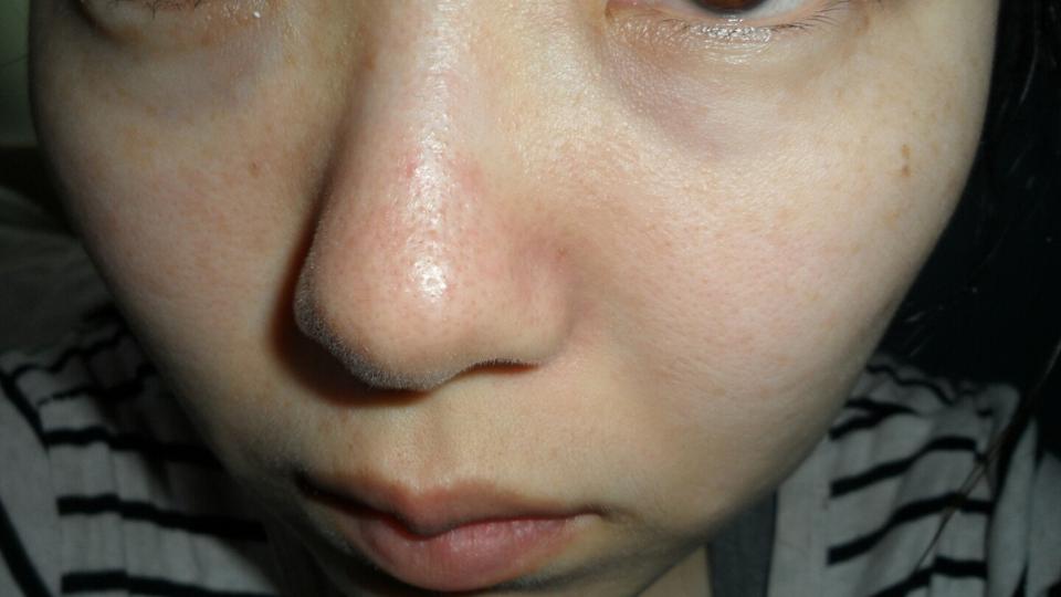 손으로 살살 밀어준 후 미온수로 씻어주고 왔어요 이미.....이번 생엔 깨끗한 피부는 포기했기에......흙흙ㅠㅠ 제 피부타입은 건성에 아주 약간의, 심하지 않은 민감성이예요 위에 사진을 보시면 알겠지만 제품을 바르는  손힘에도 얼굴이 빨개진답니다