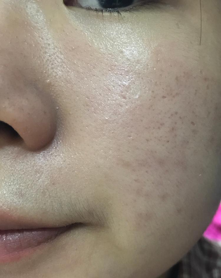 피부 톤도 높이지만, 매트>건강해보이는 피부로 성장!