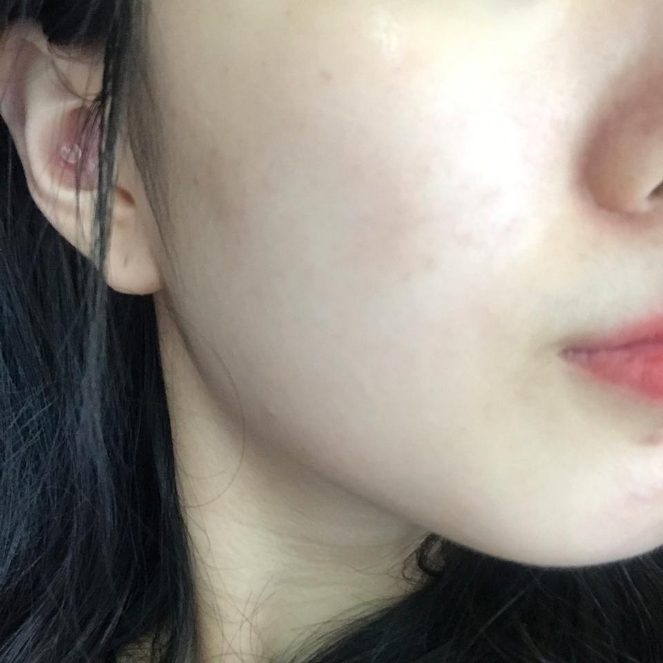 피부에 발라보았습니다 쌩얼이라 피부가 예쁘지 않은 점 양해 부탁드려요 ㅠ 제가 극건성이라서 얼굴에 수분크림을 올려도 금방 날아가기 쉽상인데 이 수분크림은 되게 오래가더라구요 ㅠㅠ 정말정말 만족합니다!!!