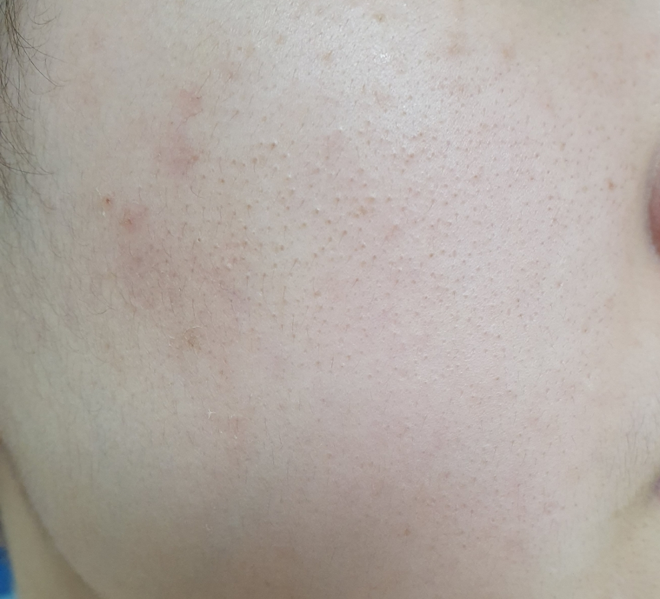 사용전 모습입니다!  딱 보기에도 건조한 피부 느껴지시나요?ㅠㅠ 푸석푸석한 피부네요 ㅠㅠ