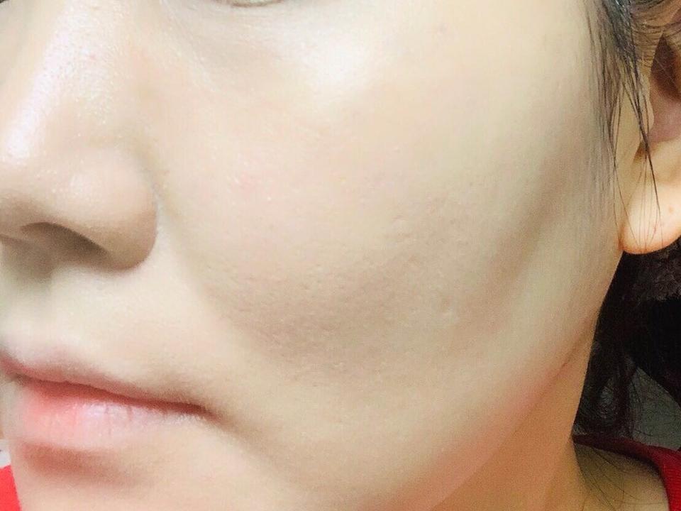 밀착은 정말 제대로 되는 파데입니다. 그래서 얼굴 요철이 좀 드러나는 거 같아요. 이날 피부 상태가 안 좋기도 했구요. 파데 전 피부 기초를 잘 해주고 올려야 할 것 같아요. 대체적으로 제품력은 우수한 편이에요.