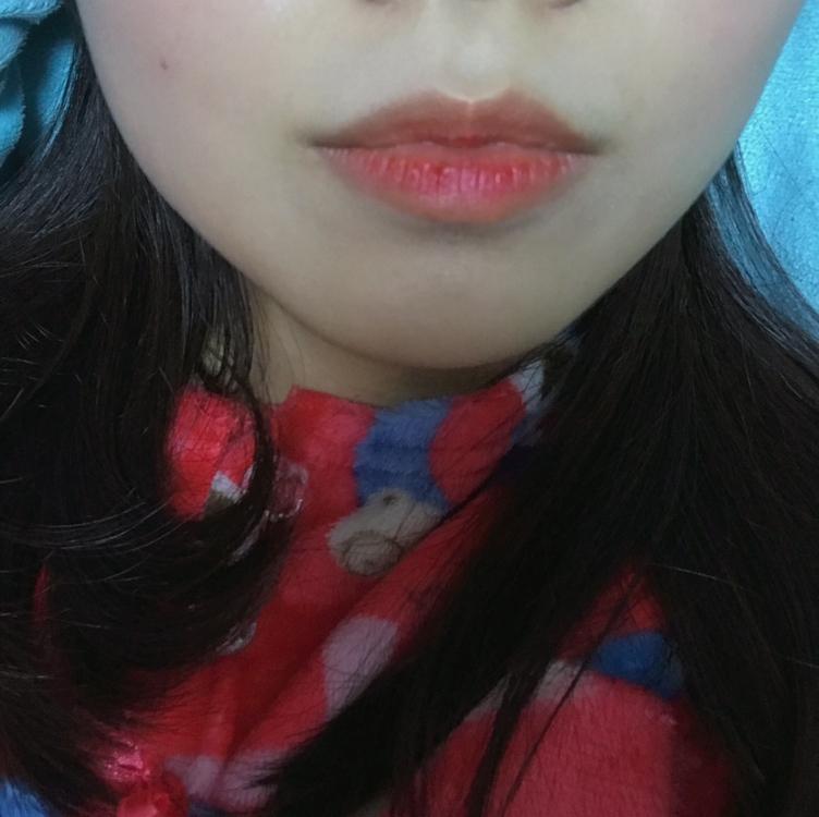 각질이 뜨고 얼룩 덜룩해진 입술위에