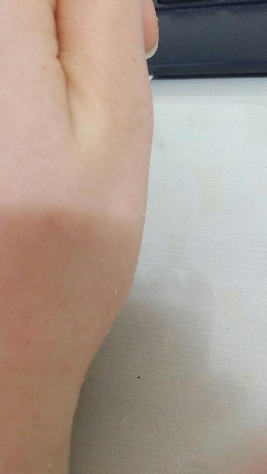 손등각질이 부슬부슬;;