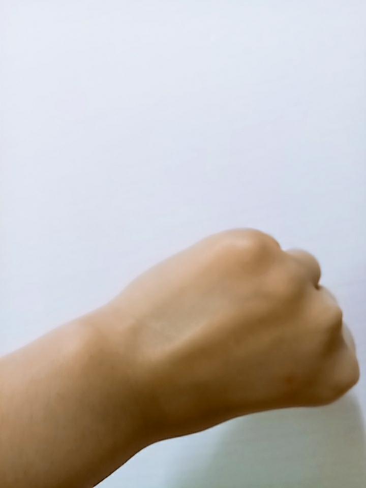 이 손등에 바른건데요 바랐어요 사진상으로 티가 잘 안나는데 무겁지 않고 흡수가 잘되는 연고입니다
