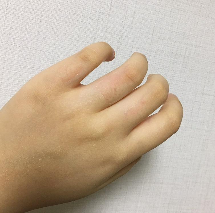 새끼손가락은 1-2가락 빼고 다 뽑혔어요!! 하지만 다른 손가락부위는 음..ㅎ