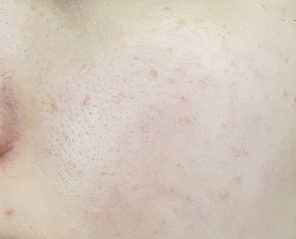 천연성분들의 효능이 깊숙히 침투하고 피부 피로나 탄력같은 문제도 해결해주는 영양감있는 앰플인데 지복합, 수부지인 제가 사용하기에 전혀 부담스럽지않고 산뜻했어요.   멜라닌색소의 결합을 막는 성분&피로로 칙칙해진 피부를 개선하는 2가지 미백성분이 들어 잡티,톤 모두 공략했어요.   이전엔 비싸다고 생각해서 안 사봤는데 최근에 gs홈쇼핑 입점해서 가격대가 내려갔고 20ml짜리 직접써보니 투자할만한 앰플이더라구요.  5ml짜리랑 팩도 나와있으니 try해보기도 좋은거같아요.