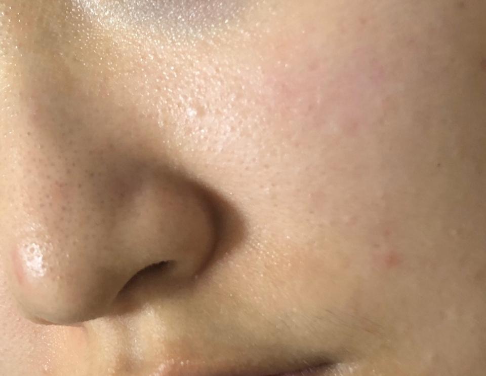저는 코와 볼의 커버가 가장 중요하다고 생각하기 때문에 이 사진들은 크게 한 장씩 갖고 왔어요! 순서는 마찬가지로 바르기 전 - 바른 직후 - 알바 갔다 온 후 순서 입니다! 바르기 전 아 너무 부끄러운데요... 제 피부 너무.... 그래도 솔직한 리뷰와 비교를 위해...