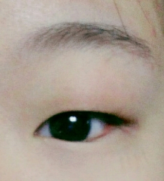 안보이는속쌍에 지방많은눈두덩이...작은눈....에라이