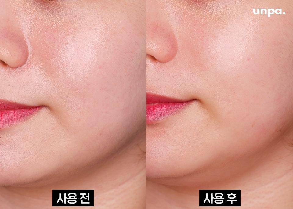 지성 피부는 드라이 오일 하나로 피부 보습 완료!  사용 전 / 후를 비교해보면 피부가 한층 매끄러워 보이지?  오일 하나로 피부가 필요로 하는 유분을 충분히 채워주니까 과도하게 생성되는 피지를 막아준다구