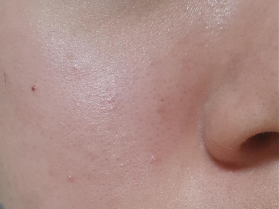 에센스 바르기전 얼굴입니다  홍조때문에 얼굴이 붉으진상태에용