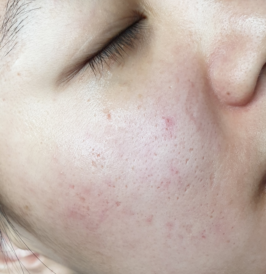촉촉그자체💕 파워촉촉함으로 피부가한층 편한하고 촉촉해지네요. 바르고시간이지나도 전혀건조함없고 오래동안촉촉함을유지하네요