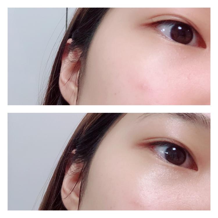 Before    & After  피부에 쫀쫀하게 흡수되어 수분감을 채워주었어요 피부에 자극적이지 않게 흡수되어요 아주아주 만족하고 앞으로도 꾸준히 사용할 것 같은 제품이에요 !!  리뷰봐주셔서 감사합니다 🙏