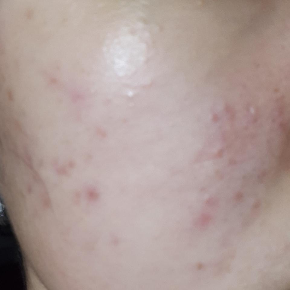 않좋았을때(사용1일차) 피부 상태입니다 올록볼록하게 올라온것도 있었고, 붉은끼도 많죠