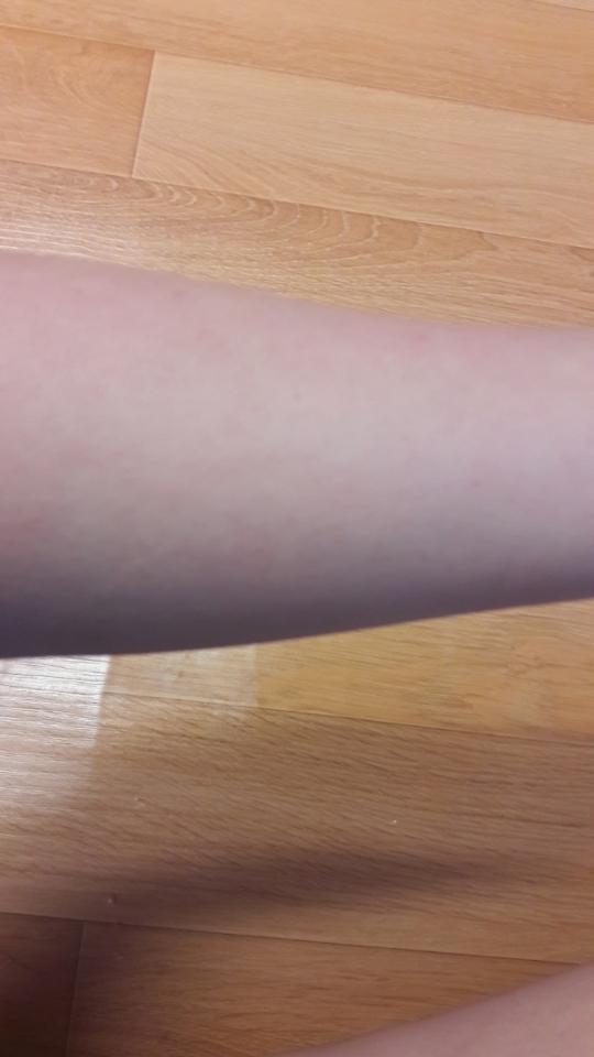 갈수록 빨개지고 그러는데 시간이 지날수록 후끈거리는것도 잦아지고 피부결로 굉장히 좋아진것같아요!