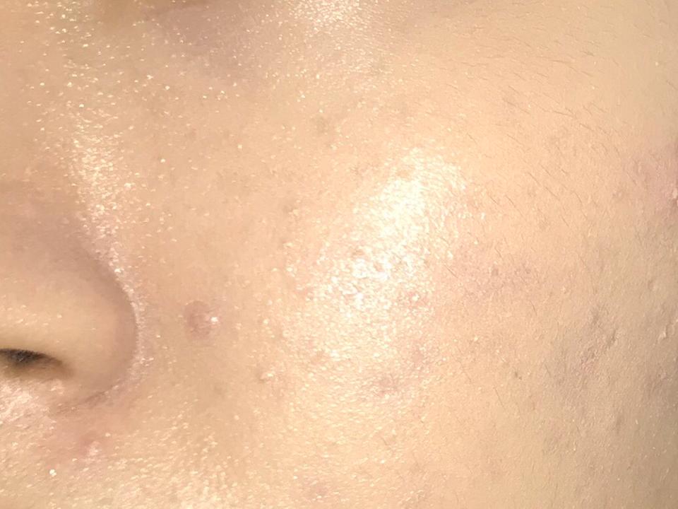 붓자국이 조금 ?나는데 티가 잘 안나네요. 코 옆부분은 잘 안발려서 저는 쿠션으로 더 두들겨줘요. 제가 피부가 좀 만더 좋고 많은 커버력이 필요없다면 얇게 발리면서 피부가 좋아보여서 정말 더 좋았을 것 같네요 ㅜㅜ