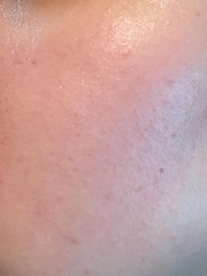 이렇게 촉촉한 피부가 완성되요👍👍 트러블도 안나고 되게 촉촉해서 좋았어요👍👍 근데 향이 한방샴푸 냄새가나서 호불호가 갈릴꺼같아요✋️