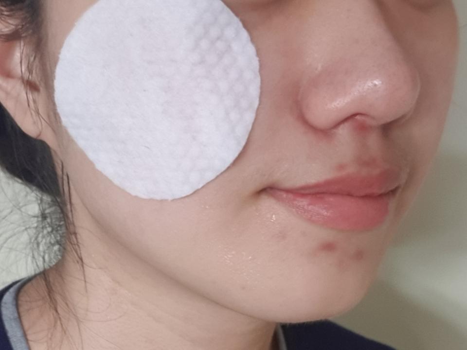 피부에 붙이고 있도 되요! 하지만 오리지널패드는 각질피지케어 전용이기에 닦아내주듯이 사용하는 걸 추천해요