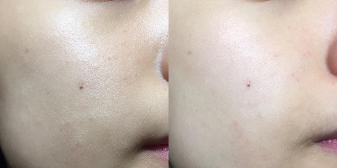 사용 전 후  기름 좔좔 , 피부 요철이 눈에 잘 보이는 피부가 보송보송 보들보들 피부로 바뀌었어요 ! 사용 후에도 다른 폼처럼 땡김이 느껴지지 않아서 너무 만족스러운 제품이었습니다 ㅎㅎ