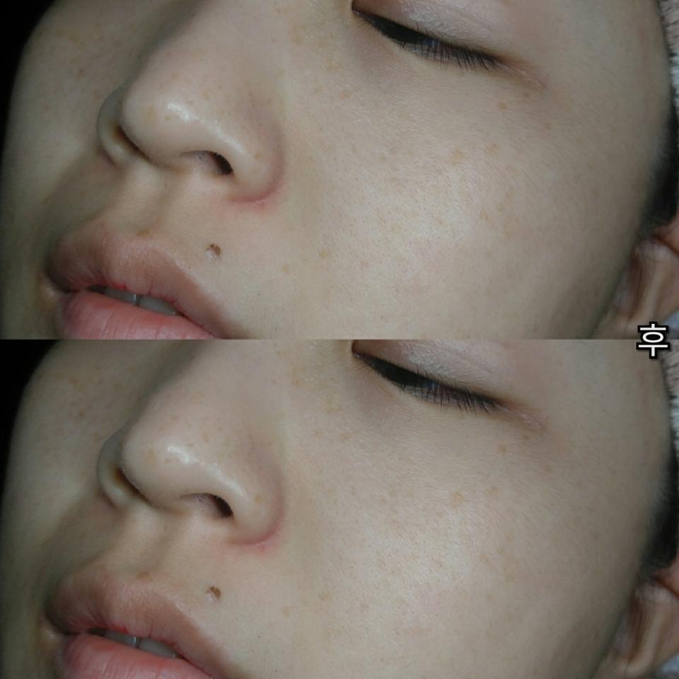 피부가 훨씬 촉촉해지고, 각질•노폐물이 정리된 느낌입니다♥