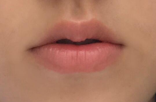 제 초라한 입술....