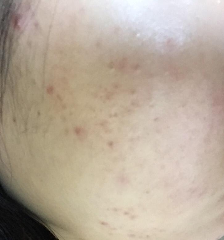 처음 제품을 받았을때 저의 피부 상태입니다..! 빨간것도 많았고 정말 피부가 안좋았죠..ㅎㅎㅎㅎ