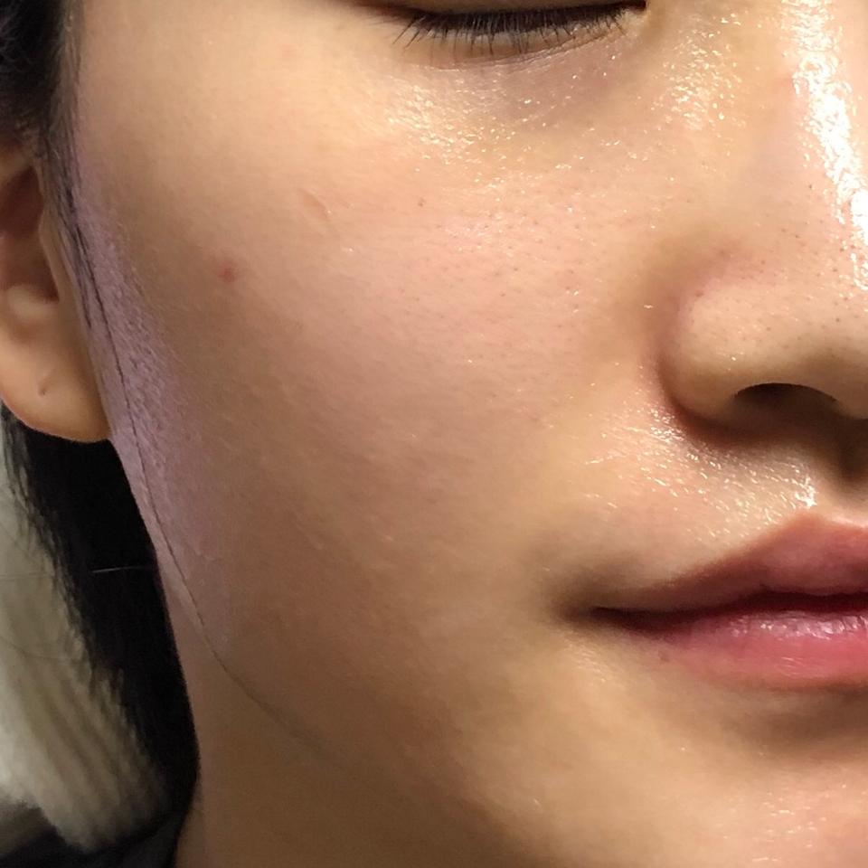 15분 뒤 팩을 때어준 모습입니다ღ   팩 시트에 얼마나 에센스가 듬뿍 흡수되어 있는지 한눈에 보이시죠?!   에센스 한병을 온전히 흡수💧하는 초흡수 이중구조 시트 덕인가봐요🙊 유채시트와 흡수시트로 이중구조 되어 있고 그 덕에 피부에 완전 쫙 밀착되는 느낌이에요!