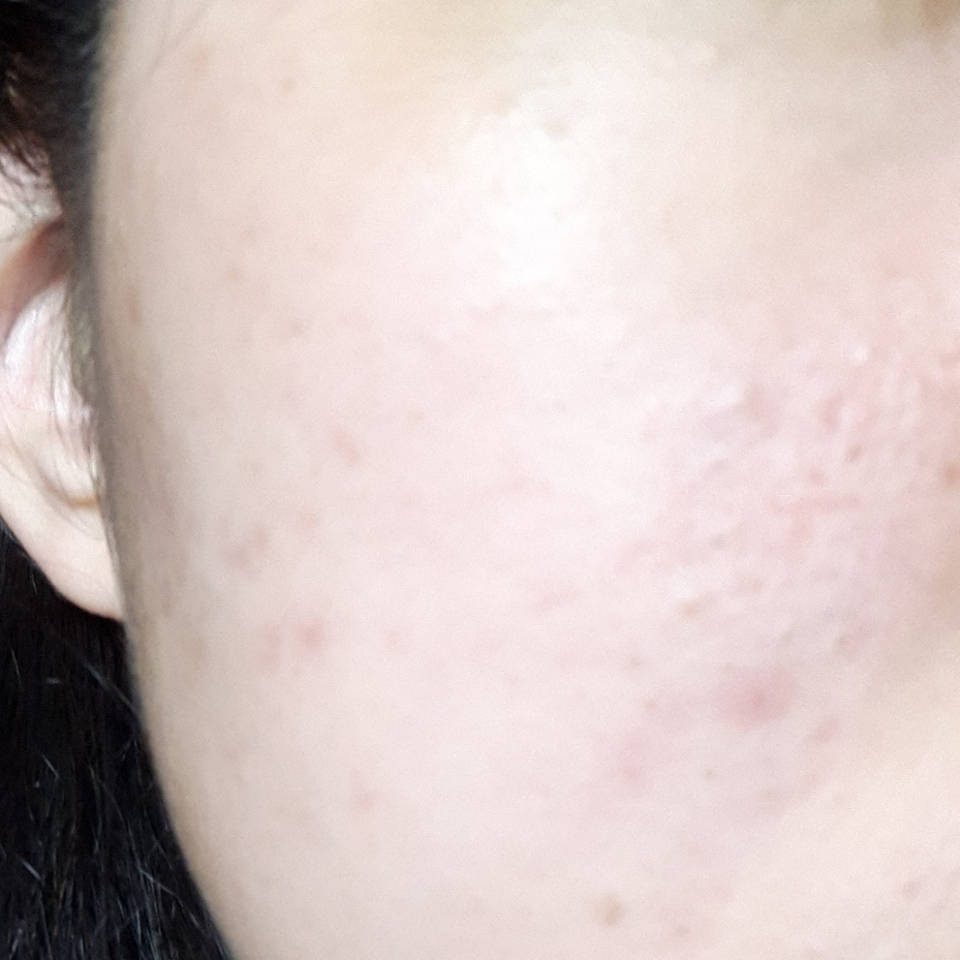 약간 조명이 좀더 가까웠나봅니다 그래도 붉은끼도 많이 없어지고 피부 진정도 된 상태이죠?