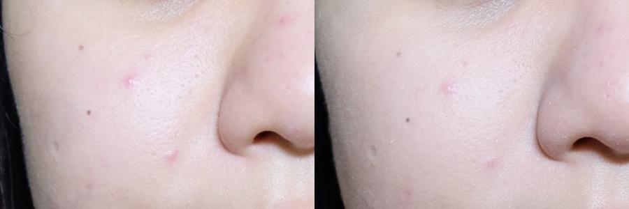 左邊是素顏  右邊是上完CC霜  因為昨天熬夜導致我痘痘炸烈  毛孔變超大=_=  可以看的出來遮瑕度並不高  但均勻膚色的效果很不錯   本來很擔心這種質地會卡毛孔  很意外地並沒有  甚至有柔焦毛孔的效果  一般款冬天用起來偏乾  夏天應該剛好 已經準備要回購保濕款XD