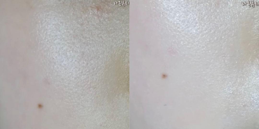 왼쪽 사용 전/ 오른쪽 사용 후  사용 전 사용 후를 보시면 모공을 약간 메꿔주는 느낌이 들었어요 처음 선크림을 딱 바르고 나면 유분기와 번들거림이 조금 많다고 생각이 들 수 있어요 시간이 지나면서 선크림이 피부에 흡수되면 유분기와 번들거림이 적어져요  선크림이 흡수되기 전에 피부 베이스 화장이 들어가거나 선크림 바른 부분을 손으로 만지게 되면 약간 벗겨짐이 있을 수 있으니 피부에 흡수될 때까지 기다려주시는게 좋아요!