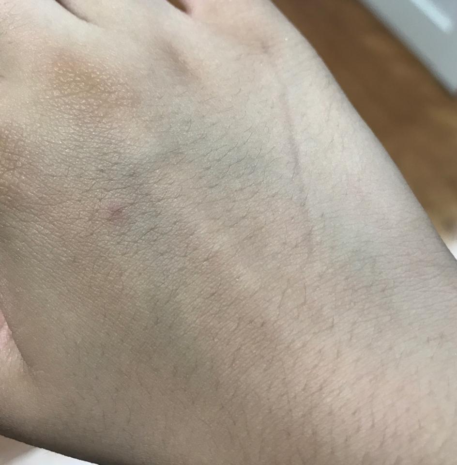 부끄럽지만 제 손...너무 드릅다...