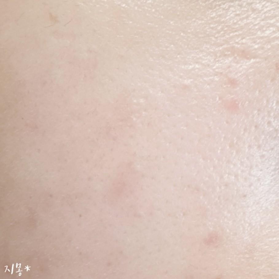 기초단계까지 한 피부에요. 늘어진 모공이랑 트러블 흔적 ㅠㅠ 정말 가릴 것이 많은 피부!