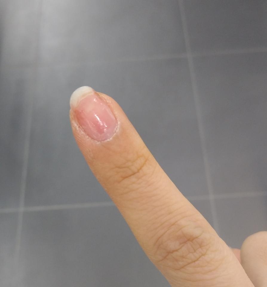 손톱 흰부분 건조하고 깨질거 같은 ㅜ