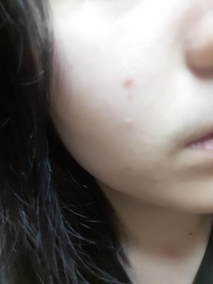 씻고 아주 땃땃하게 된 피부에요.
