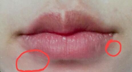 각질이 아까보다 더 올라왔어요ㅠㅋㅋ그리고 입술 주변에 묻어버리면 잘 안지워지더라구요ㅋㅋ 입술이 잘지워지고 피부는 안지워지다니...