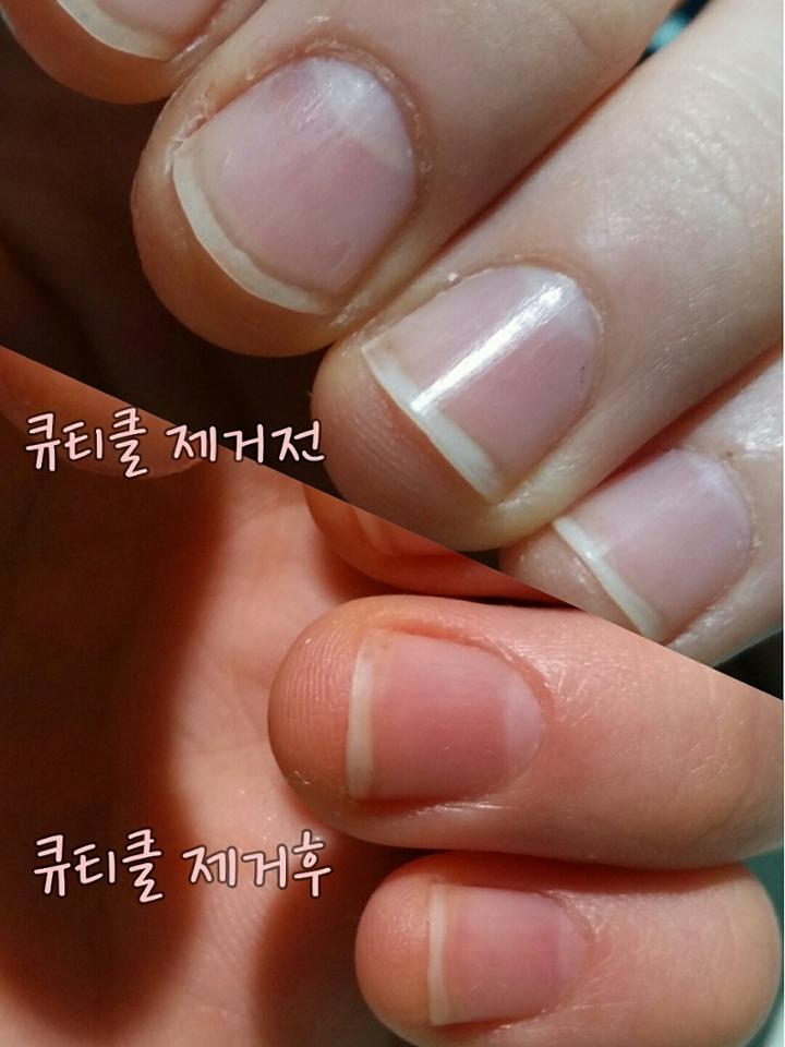 제거 전후사진이에요😃확실히 차이가있져? 제거하면 뭔가...손톱도 길어보인달까 버릇을고치고있는 저에겐 매우 뿌듯하네요✌