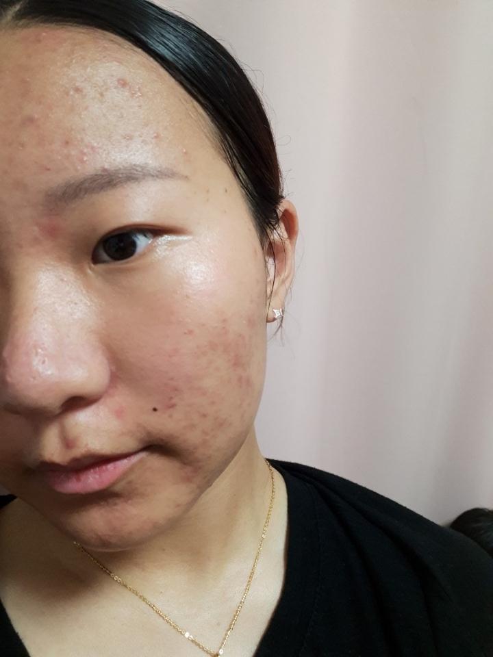 제 비루하고 잡티투성이 피부에요.. 일단 오른쪽사진이구요