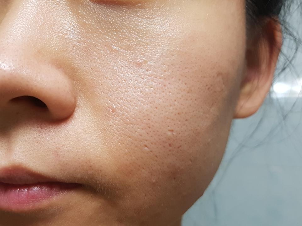 LG 프라엘 초음파 클렌저를 이용해서 유분기 가득한 제 피부를 클렌징 해볼게요-❤😘