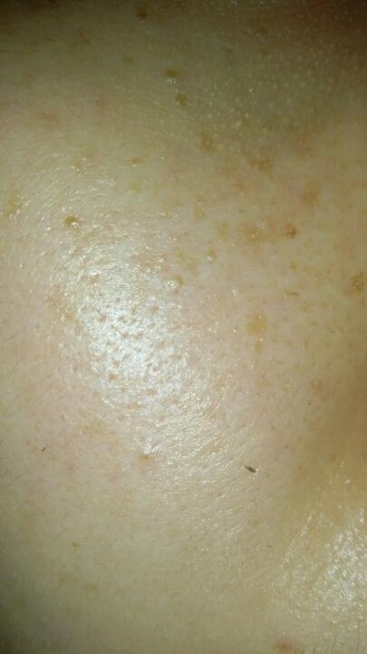 사용3주째 찍은 사진.. 피부도 약간은 환해졌고 작은기미는 조금은 옅어졌네요