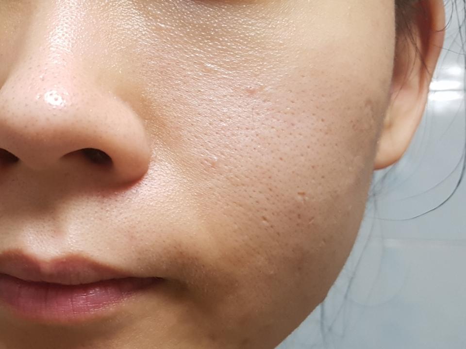 클렌징 후는 확실히 개운!😍  LG 공식 홈페이지의 제품 설명에 따르면, 클렌저를 한 번만 사용해도 피부각질 감소 효과 및 모공 축소 효과를 확인할 수 있다고 해요.  실제로 여러 후기 글을 찾아봤을 때 1회 사용만으로도 즉각적인 피부 개선 효과를 보신 분이 있으셨는데요,   저는 사실 일반적인 클렌징으로도 일시적인 피부 개선 효과를 볼 수 있다고 생각해서..... 그것이 100% 초음파 클렌저 덕분이었다고 생각하지는 않아요.😂😂  그렇지만 확실히 일반적인 클렌징에 비하여,  미세 진동을 통한 마사지 효과로 클렌징 후가 개운했어요~😍 제 피부가 민감함에도 불구하고, 세안 후 얼굴 붉어짐이나 따가움이 없었던 것을 보면 저자극도 맞는 것 같습니다! (참고로 저는 미세모 소재의 모공 브러쉬를 사용하면 피부 따가움이 있는 예민 보스입니다.)  언니가 이거 쓰면 너도 이나영님 피부 되는거냐고 묻던데...... 솔직히 피부는 타고나는 것 + 한번 망가지면 되돌릴 수 없는 것이기 때문에 그건 죽었다 깨어도 불가능하다고 생각합니닼ㅋㅋㅋㅋㅋㅋ  그러나 장기간 꾸준히 사용한다면 피부가 매끄러워지고, 밝아질 수 있다는 사실을 믿어의심치 않아요!👍