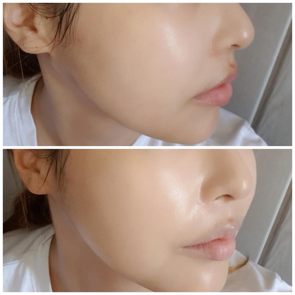 저는 크게 커버할게 없지만 코옆 그래도 붉은기나 전체적인 피부톤을 균일하게 잡아줘요.