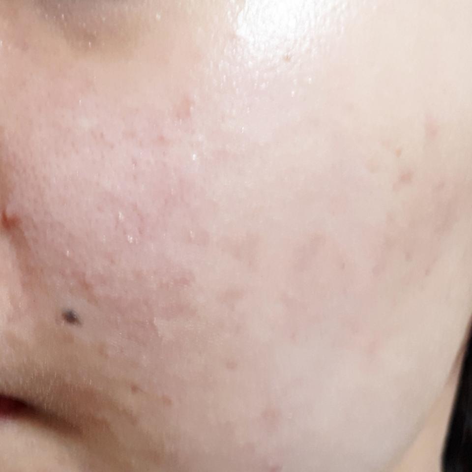 요새 계속 피부가 안좋아서ㅠㅠㅠ 여드름이 없어지면 생기고 없어지면 또 생기네요ㅠ 여튼 시험하기 참 좋은 피부죠??😭 한번 발라보도록 하겠습니당