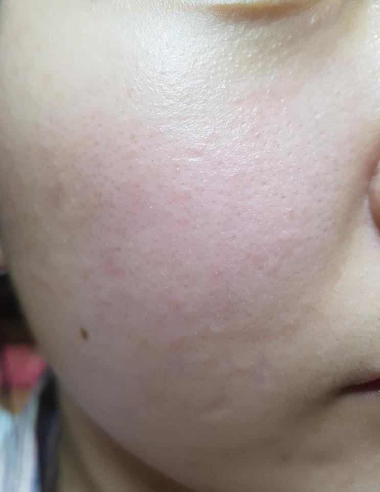 피부에 바른후 입니다! 흡수는 잘되는 편이었어요 그리고 건조함이 잡히고 피부에 촉촉함이 느껴졌어요~~  꾸준히 쓰면 붉은끼완화에 효과를 볼 수 있답니다!!