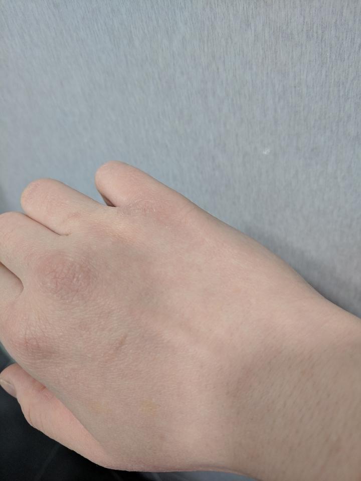 토너패드 쓰임새는 여러가지지만 일단 보습효과는 어떤지!! 제 건조 건조한 손에 실험해보았어요. 손가락 사이사이 부르튼거 보이시나요... 하루에 서너번씩 핸드크림 발라도 저렇답니다 엉엉😭