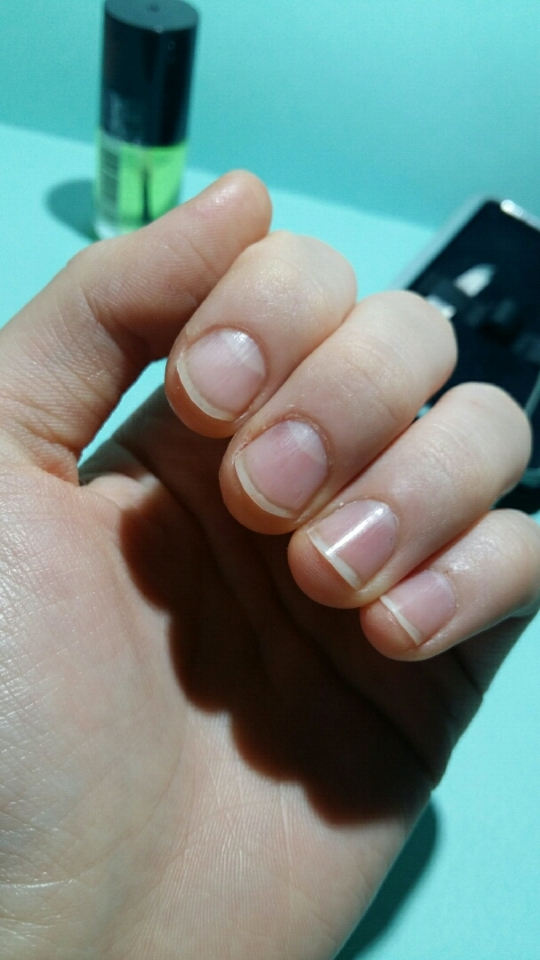 일단 내 못생긴손톱 사실 손톱을 물어뜯는버릇이 초등학교때부터있었는데 이주일전부터 손톱기르기로 결심했어요 그래서 아직은 삐뚤빼뚤해요:-(  큐티클라인에 큐티클이 두툼하게 자리하고있어요 저번에 처음정리하고 안했거든요 ㅜ