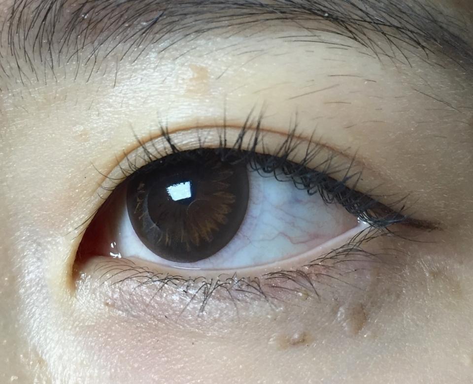 하루 10시간이상 렌즈끼는 최악 건조안인 저는 충혈이 있어요 ,,  아큐브는 눈물순환이 잘 안되지만 눈에 딱 안착되어 이물감이 느껴지지 않는 구조에요