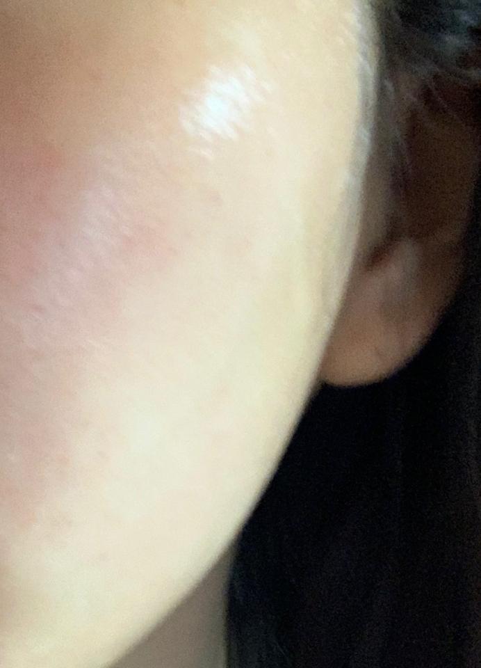 피부가 뒤집어지고 빨간 점 같은게 나서 피부 고민이 많았는데 팩 사용한 후 좀 진정된거같아요