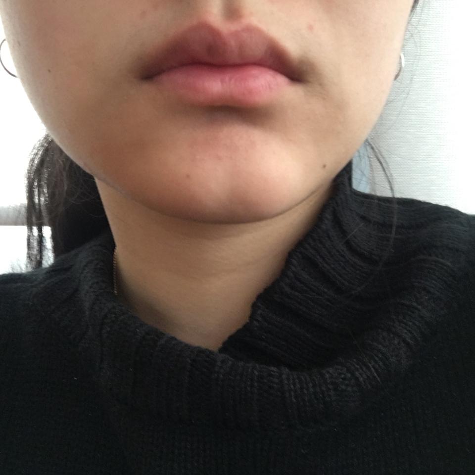 입술에도 바를수 있는제품이라 한번 발라봤습니다 ! ( 완전 쌩얼이라 피부가 마니 안조아요 ^ㅠ^ ... 🌟 )