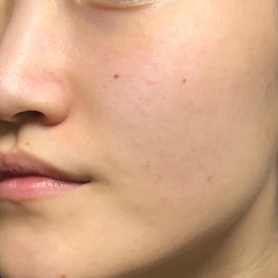 세수를 마친 건조한 제 얼굴입니다 건조해서 피부결도 푸석푸석하고 잡티가 잘 생기는 피부에요 아이소이가 구해주겠죠?!😚