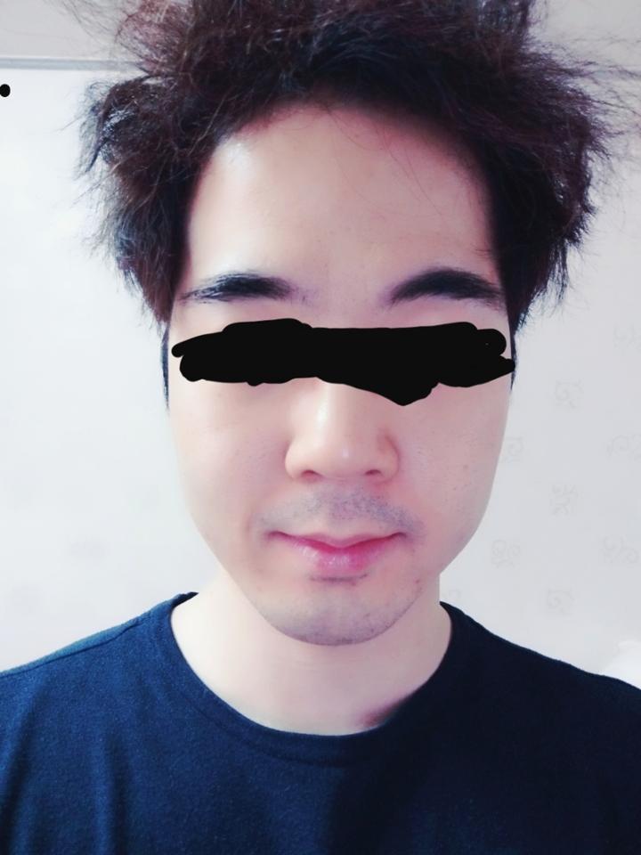 Before(엉망인 얼굴등장★ 지성..)