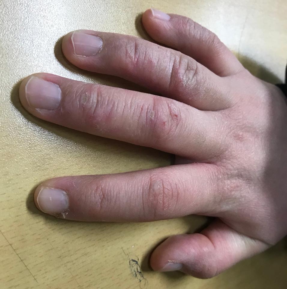 주부습진 거칠어진 손 여기저기 튼 살😢